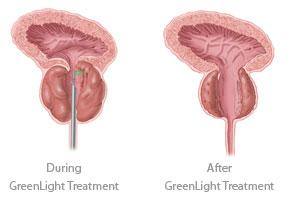 GreenLight Treatment comparison at AUS