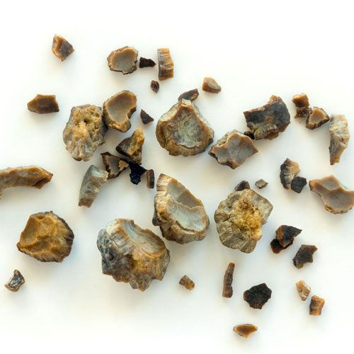 Kidney Stones Associated Urological Specialists
